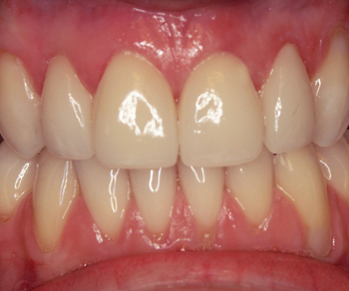 Emergency Dentist Balgowlah