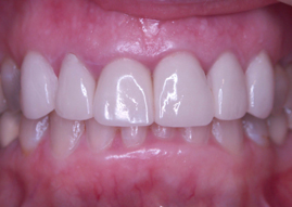 teeth result photo of our dental services