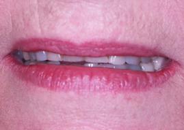 Emergency Dentist Mosman